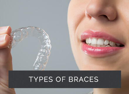 Retainers Gants Hill | Ilford | Brace Care