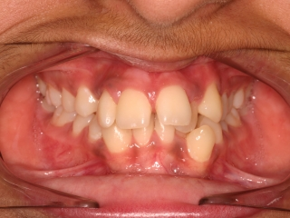 Orthodontic results