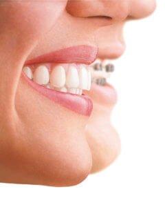 do braces hurt
