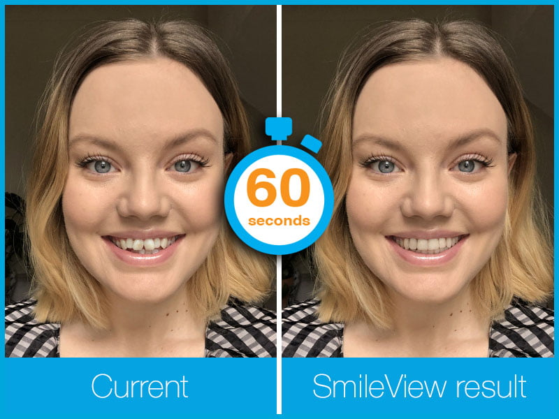 Instant Invisalign Results