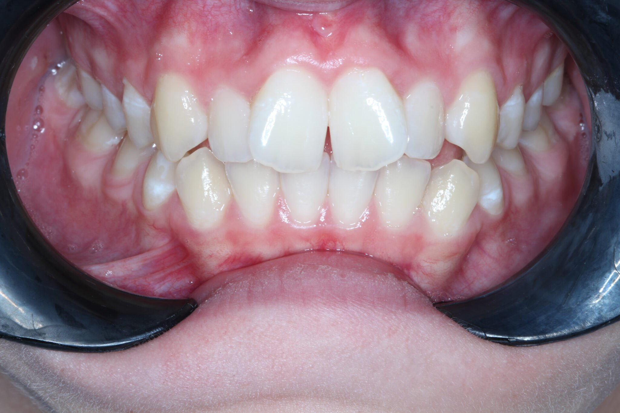 Fixed Brace Results